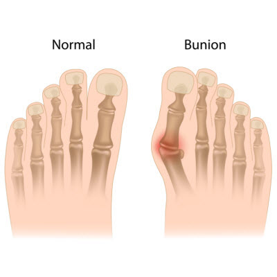 bunion-treatment-kennett-square-pa