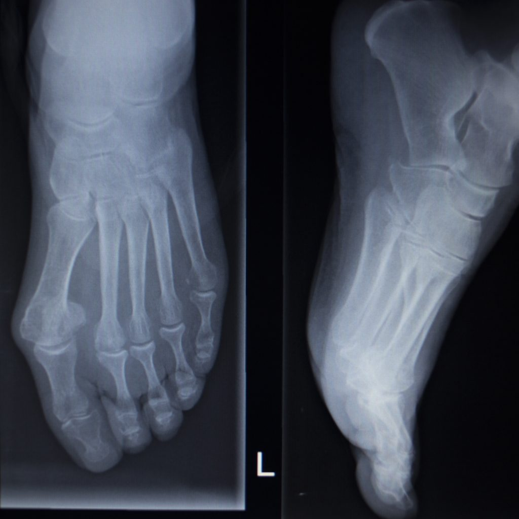 X-ray orthopedic medical anterior posterior AP CAT scan of painful foot injury in traumatology hospital clinic.