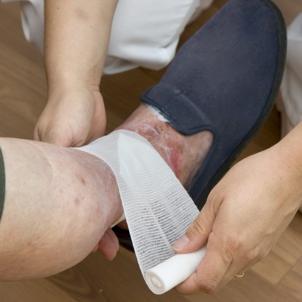pose d'un bandage  la jambe